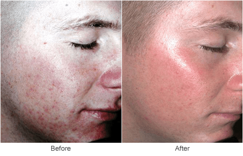 Acne Scar Treatment in St. Louis: Microdermabrasion & Skin ...