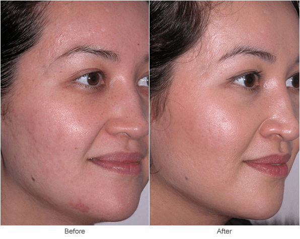 facial Treatment scar for
