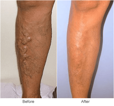 Treatment & Causes of Varicose Veins