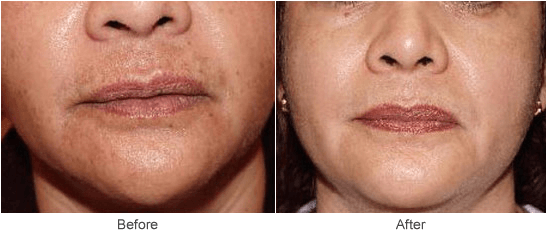 Chemical Peel: Before & After