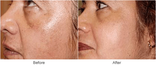 Chemical Peel Treatments & Cosmetic Skin Rejuvenation in St. Louis