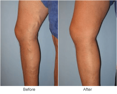 varicose vein ablation