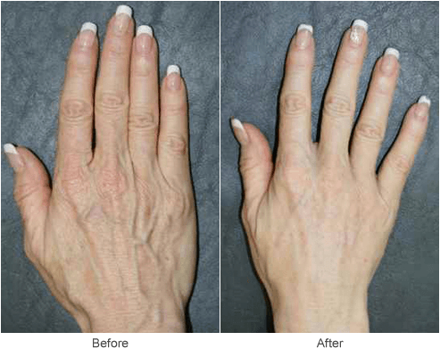 best treatment for aging hands