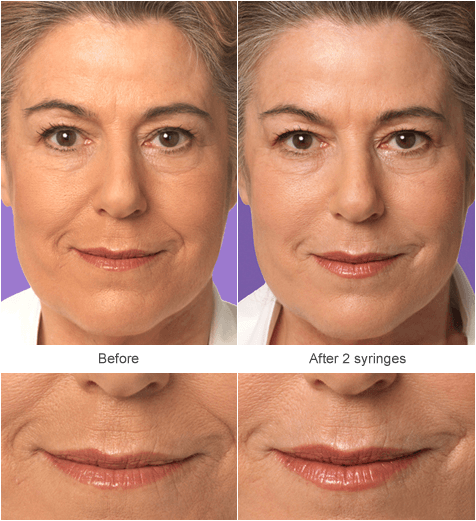 Juvenderm Filler Injection Before and After Photos