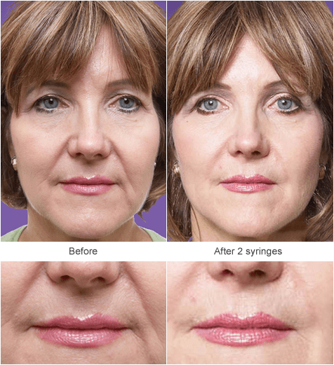 Juvenderm Filler Injection in St. Louis: Before and After Photos