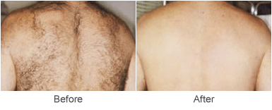Laser Hair Removal in St. Louis: Before & After