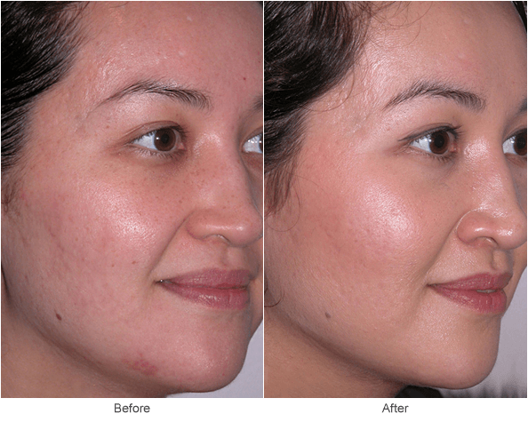 Microdermabrasion: Anti-Aging Skin Treatment Before & After