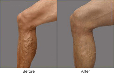 varicose vein treatment recovery