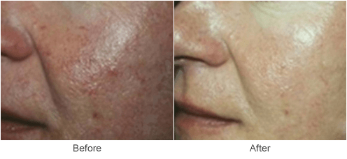 >Photofacial Skin Treatment - Before & After Photo