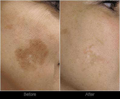 Sun Spot Removal: Pigmented Lesion Skincare Treatments