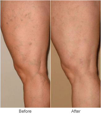 Sclerotherapy Vein Treatment: Before & After in St. Louis