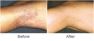 Sclerotherapy Vein Treatment Before & After Photo