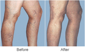Varicose Vein Treatments & Sclerotherapy Treatment Before & After