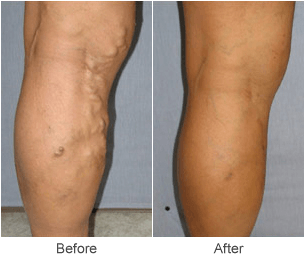 Varicose Vein Treatments: Before & After Photos