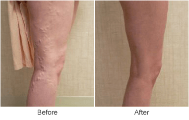 Sclerotherapy Varicose Vein Treatments in St. Louis