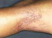 Treatment for Spider Veins in St. Louis