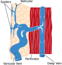 Spider Vein Causes & Treatment Services in St. Louis