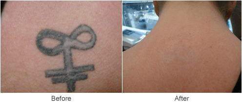Laser Tattoo Removal Treatment in St. Louis | Before & After