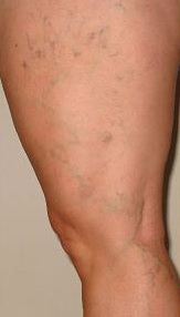What Are Spider Veins & Treatments