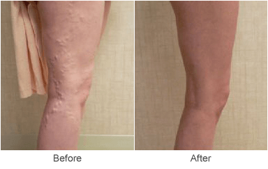 Before & After Treatment for Varicose Veins