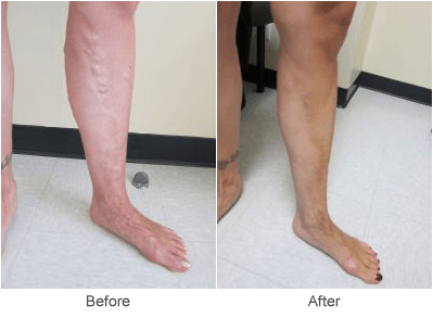 Varicose Vein Treatment Before & After Photo